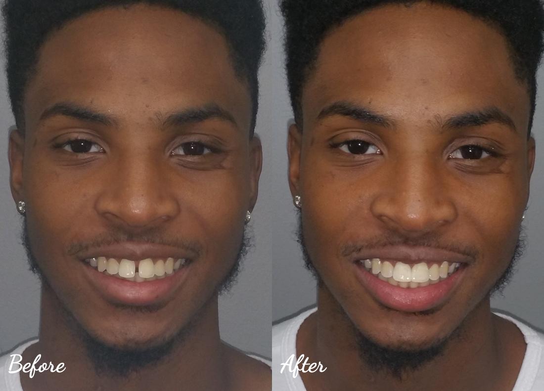 dental-bonding-7