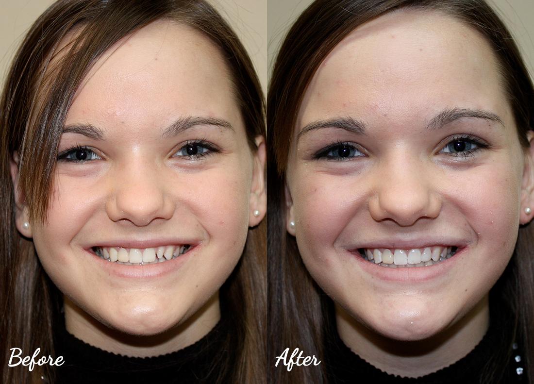 dental-bonding-9 Cosmetic Dentistry of Murfreesboro