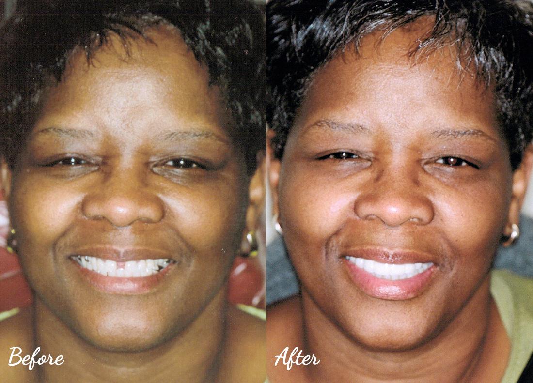 dental-crowns-murfreesboro-23 Cosmetic Dentistry of Murfreesboro