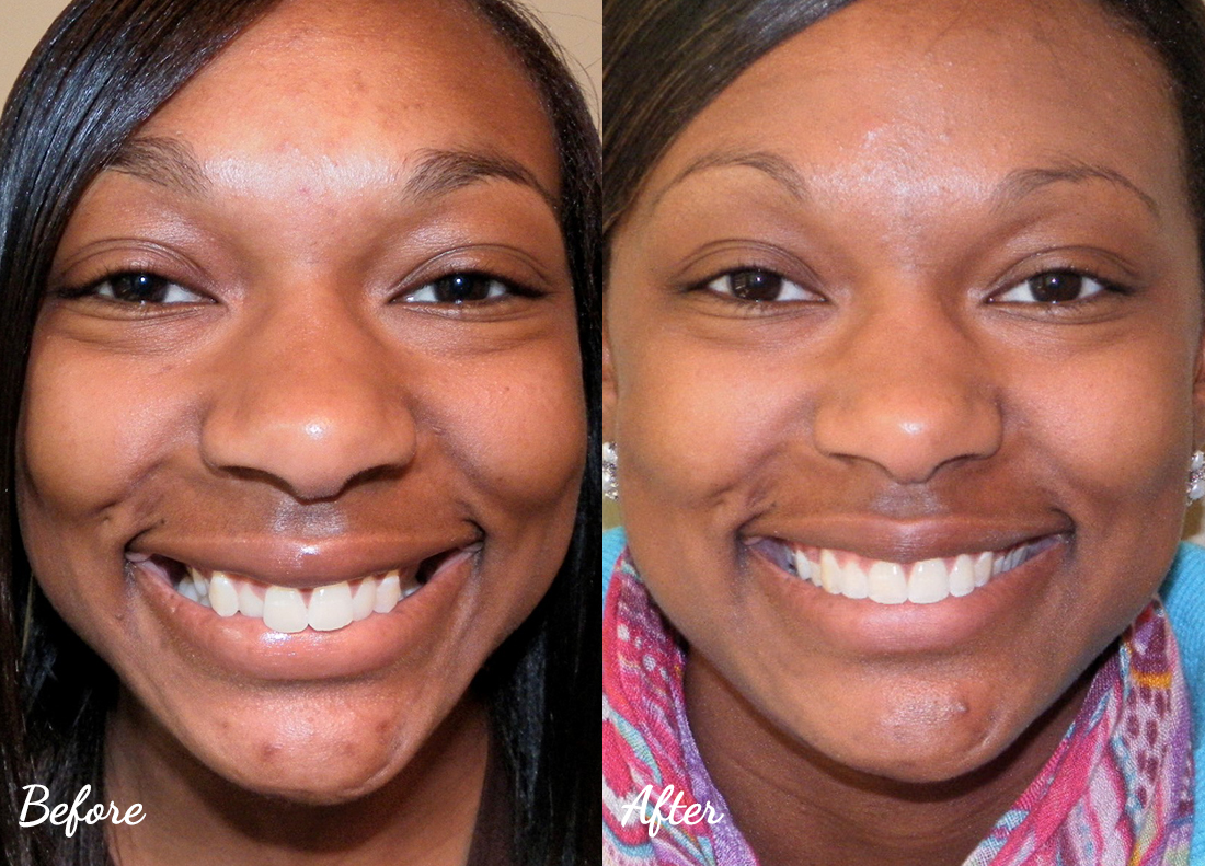 invisalign-25 Cosmetic Dentistry of Murfreesboro before and after