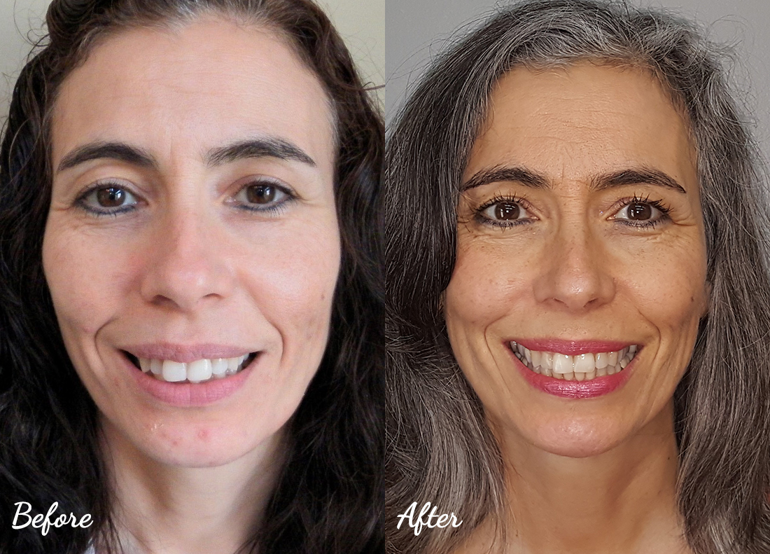 invisalign-27 Cosmetic Dentistry of Murfreesboro before and after