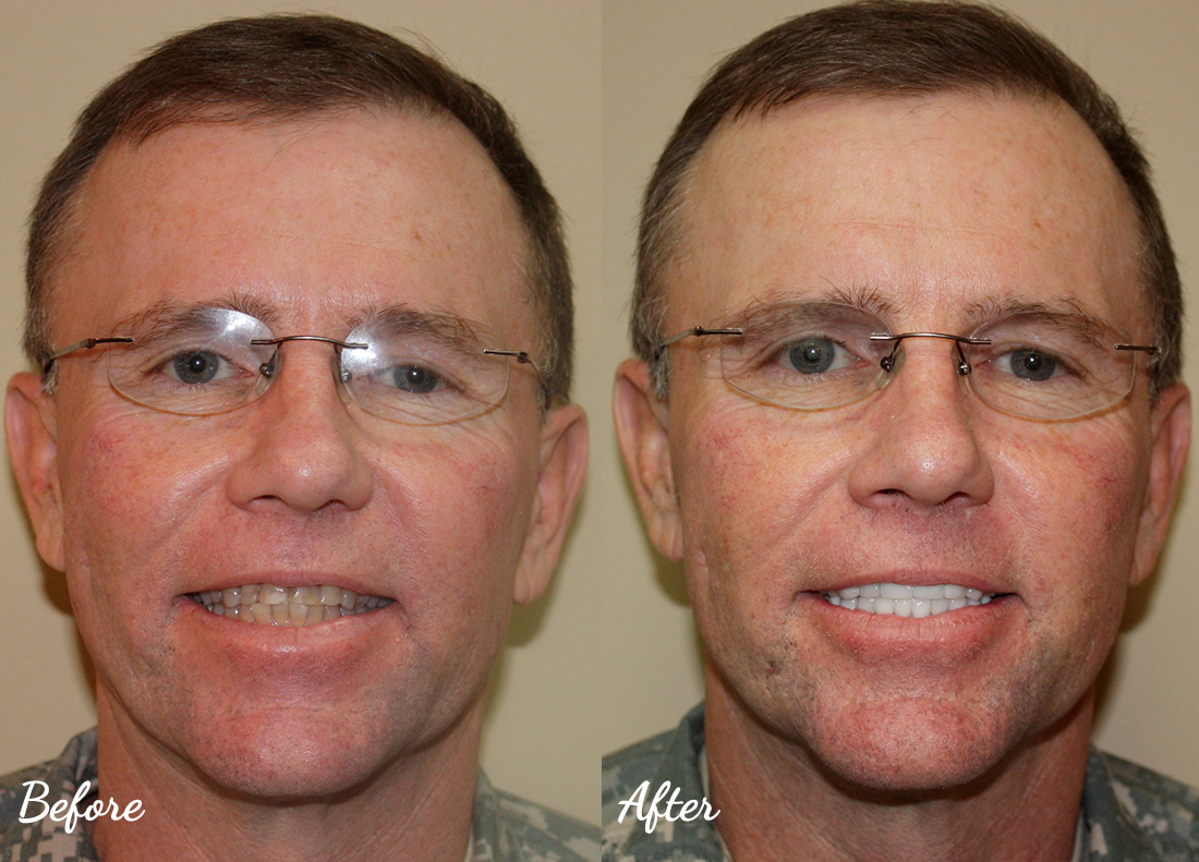 dental-veneers-murfreesboro-28 Cosmetic Dentistry of Murfreesboro